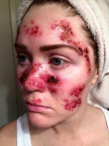skin-cancer-selfie